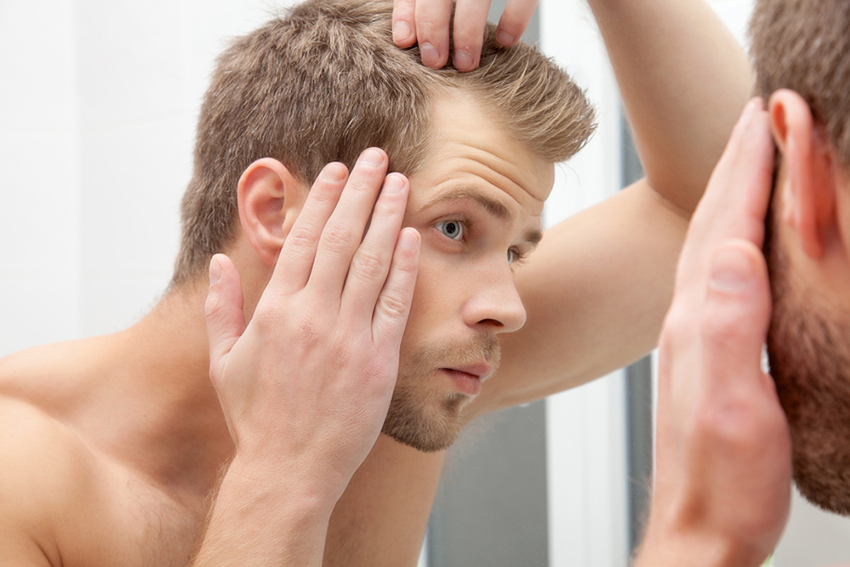 men's hair loss
