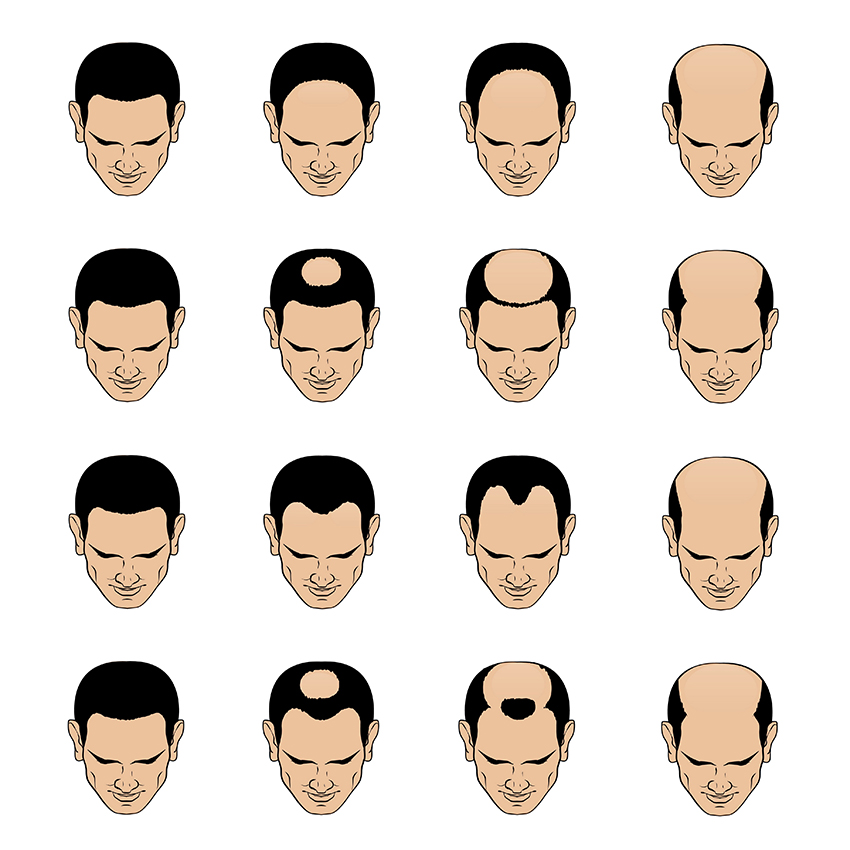 signs of hair loss